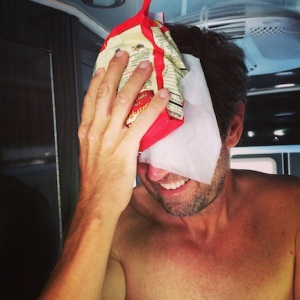 Mark, trying to cool off by putting a bag of frozen vegetables on his forehead.